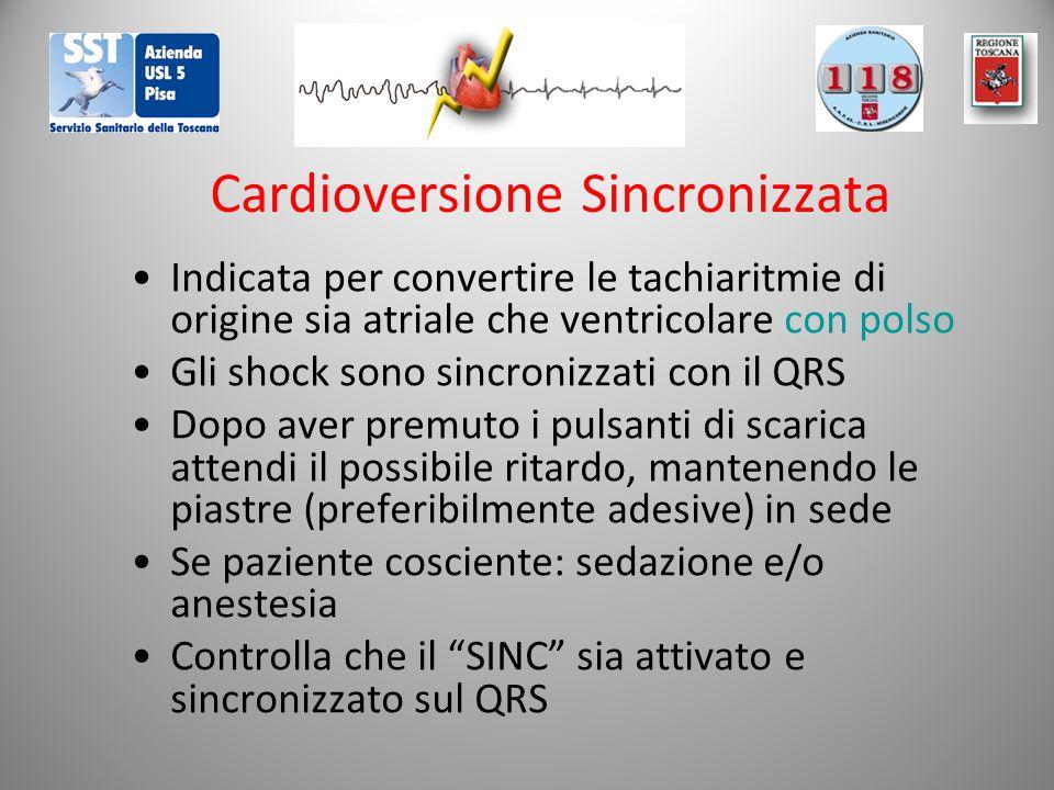 Cardioversione Sincronizzata