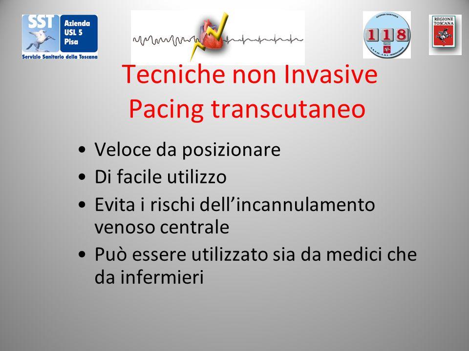 Tecniche non Invasive Pacing transcutaneo