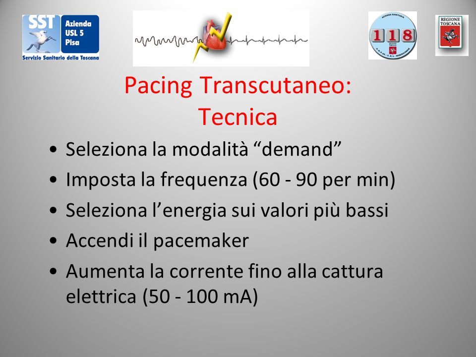 Pacing Transcutaneo: Tecnica
