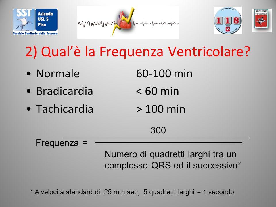 2) Qual'è la Frequenza Ventricolare