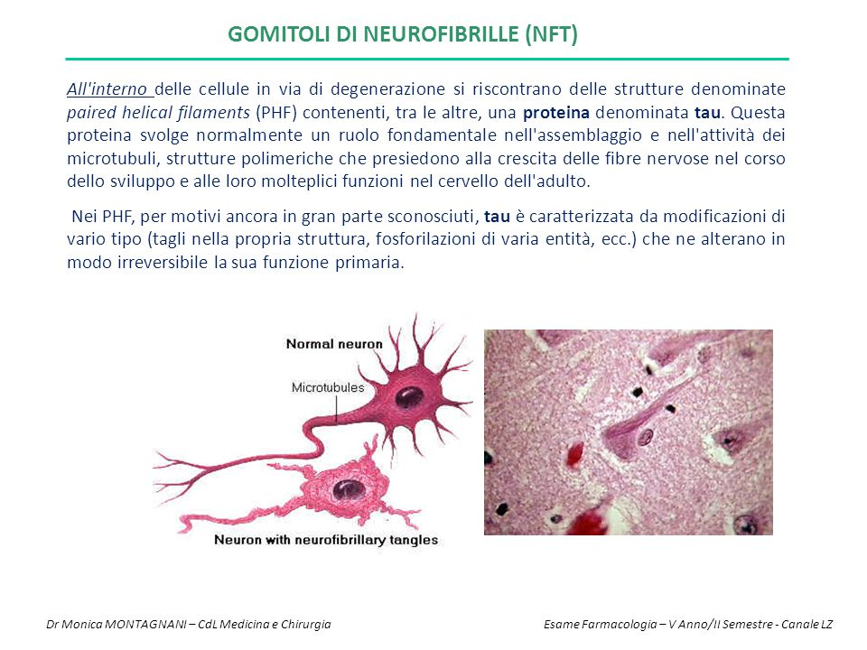 Gomitoli di neurofibrille (NFT)