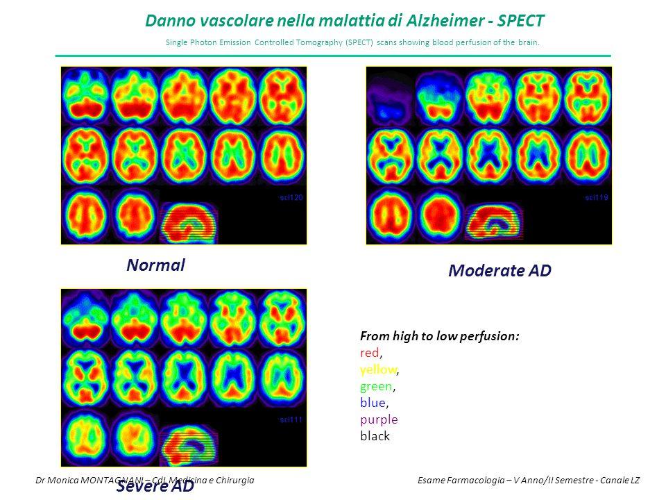 Danno vascolare nella malattia di Alzheimer - SPECT