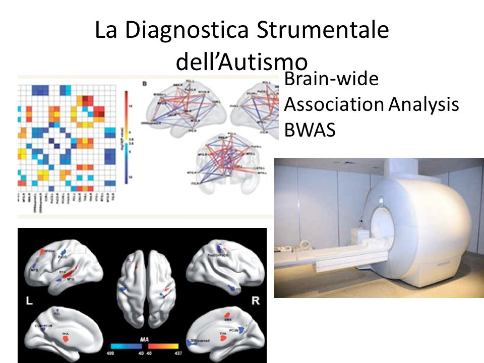 La Diagnostica Strumentale dell'Autismo