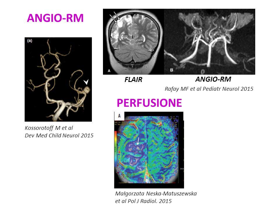 ANGIO-RM PERFUSIONE FLAIR ANGIO-RM Rafay MF et al Pediatr Neurol 2015
