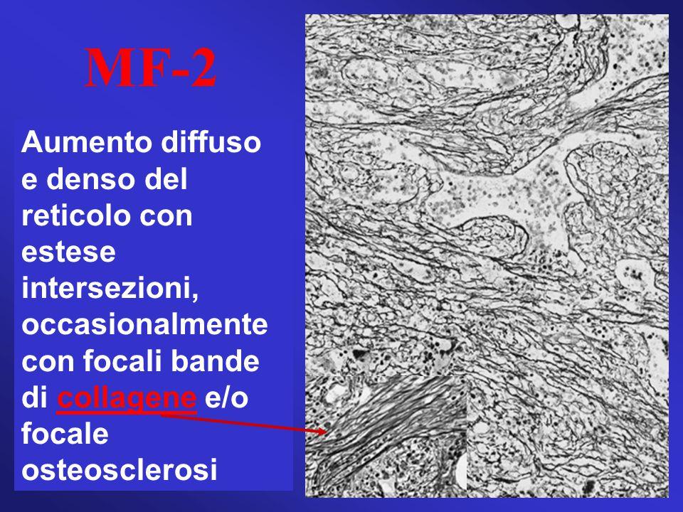 MF-2 Aumento diffuso e denso del reticolo con estese intersezioni, occasionalmente con focali bande di collagene e/o focale osteosclerosi.