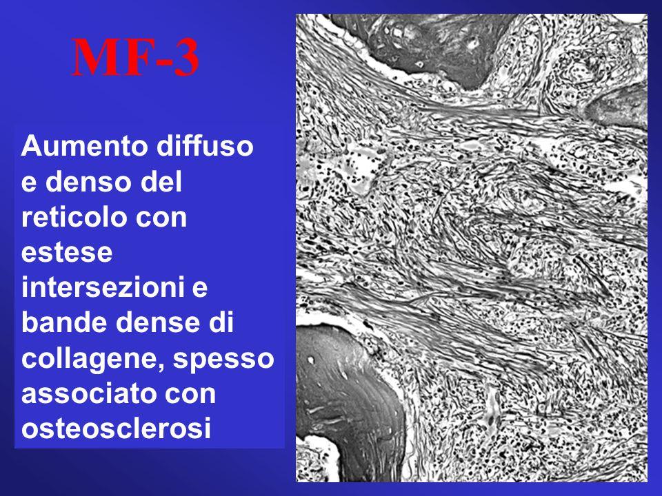 MF-3 Aumento diffuso e denso del reticolo con estese intersezioni e bande dense di collagene, spesso associato con osteosclerosi.