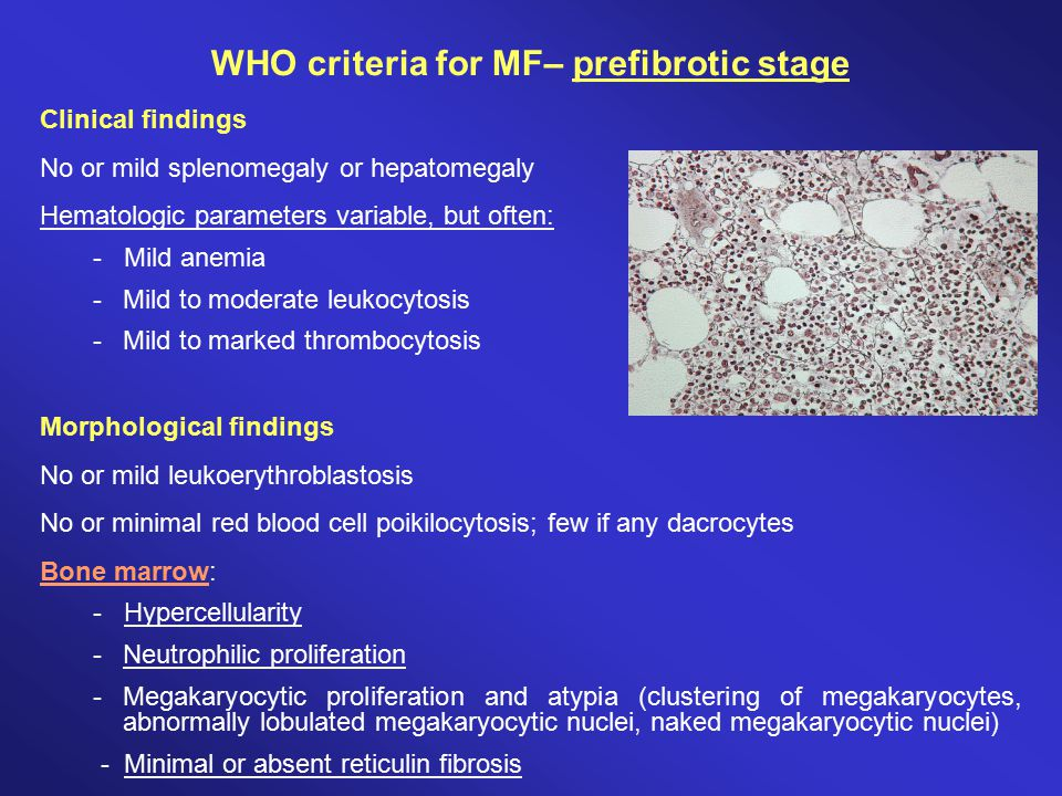 WHO criteria for MF– prefibrotic stage