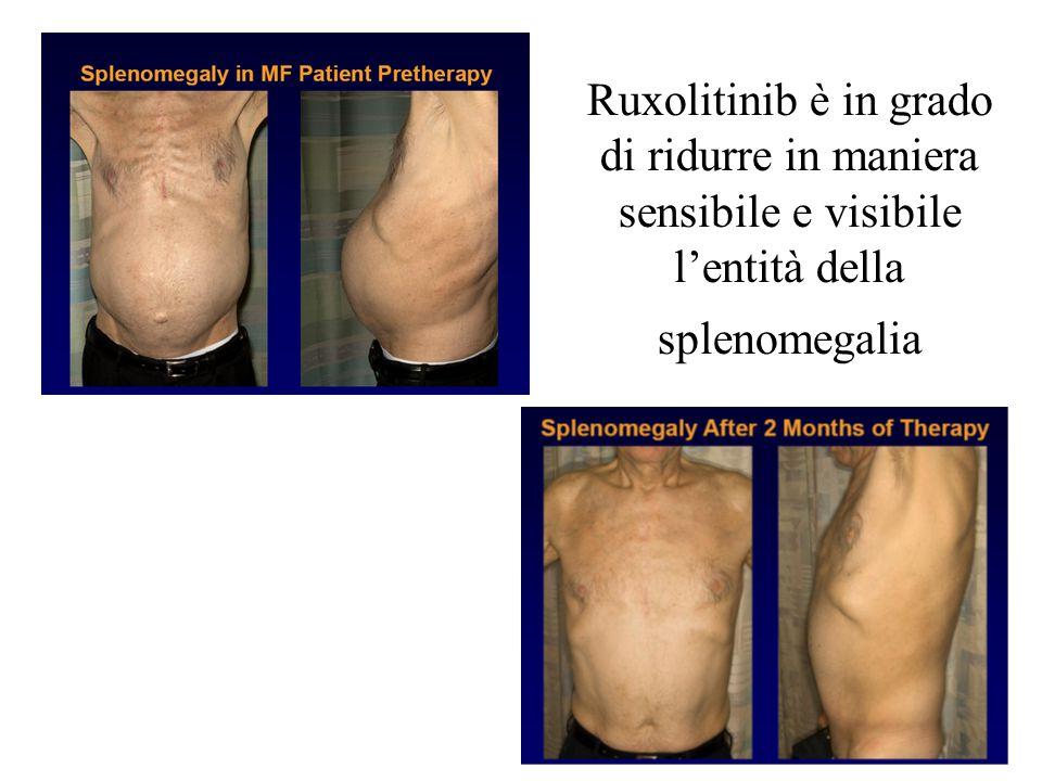 Ruxolitinib è in grado di ridurre in maniera sensibile e visibile l'entità della splenomegalia