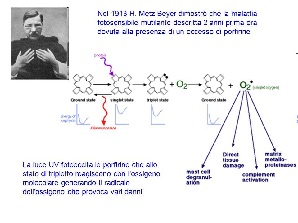 Nel 1913 H. Metz Beyer dimostrò che la malattia fotosensibile mutilante descritta 2 anni prima era dovuta alla presenza di un eccesso di porfirine