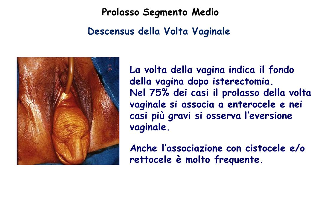 Prolasso Segmento Medio Descensus della Volta Vaginale