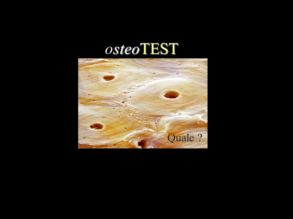 osteoTEST Quale