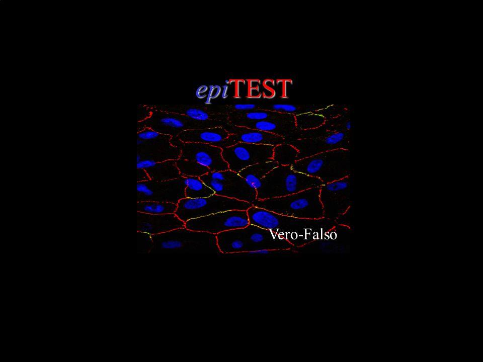 epiTEST Vero-Falso