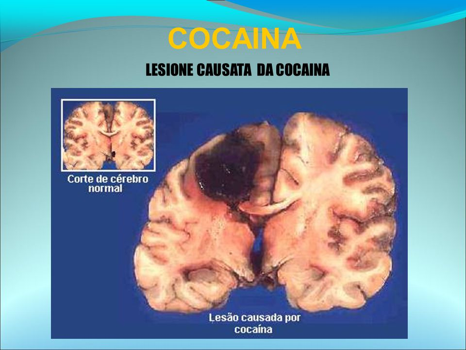COCAINA LESIONE CAUSATA DA COCAINA 26