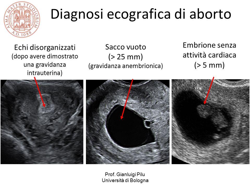Diagnosi ecografica di aborto