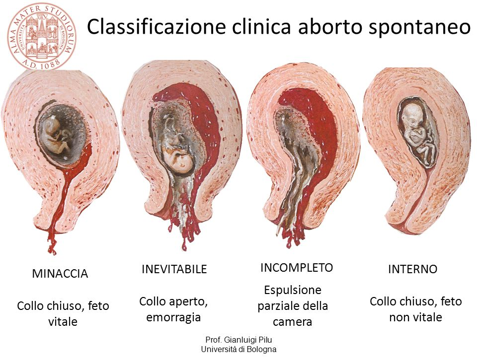 Classificazione clinica aborto spontaneo