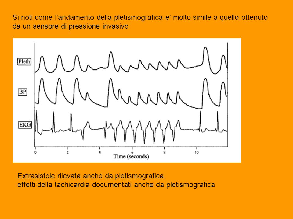 Si noti come l'andamento della pletismografica e' molto simile a quello ottenuto