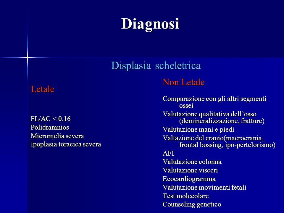 Displasia scheletrica