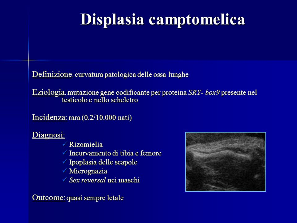 Displasia camptomelica