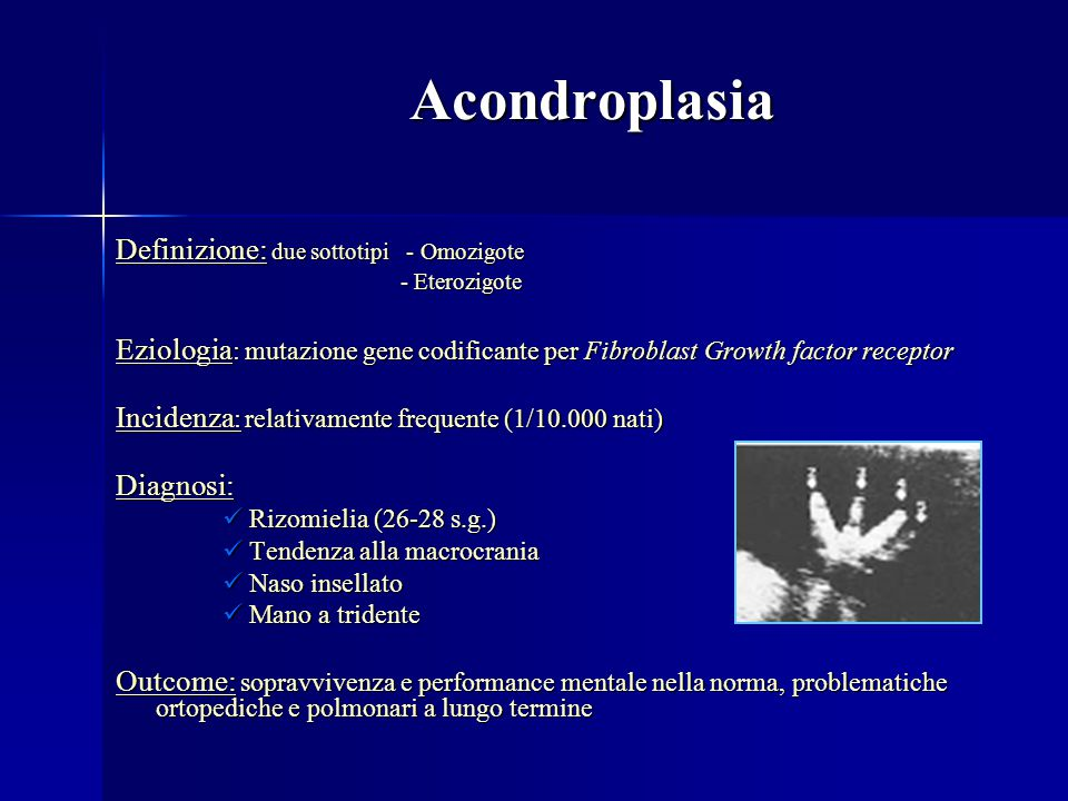 Acondroplasia Definizione: due sottotipi - Omozigote