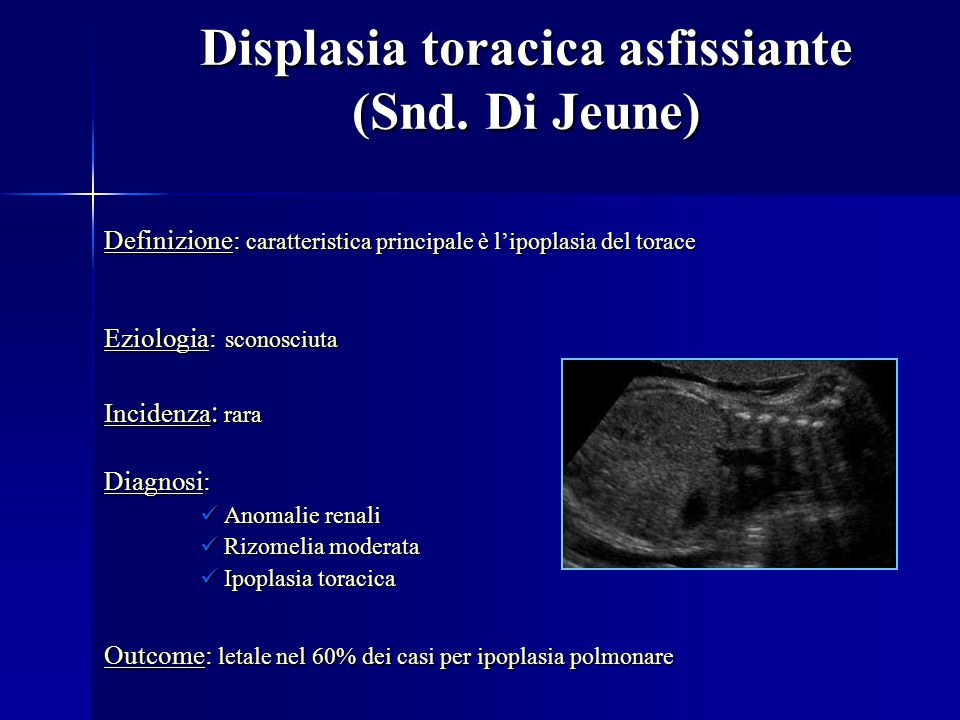 Displasia toracica asfissiante (Snd. Di Jeune)