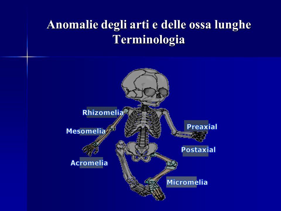 Anomalie degli arti e delle ossa lunghe Terminologia