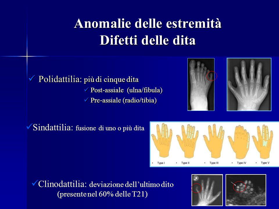 Anomalie delle estremità Difetti delle dita