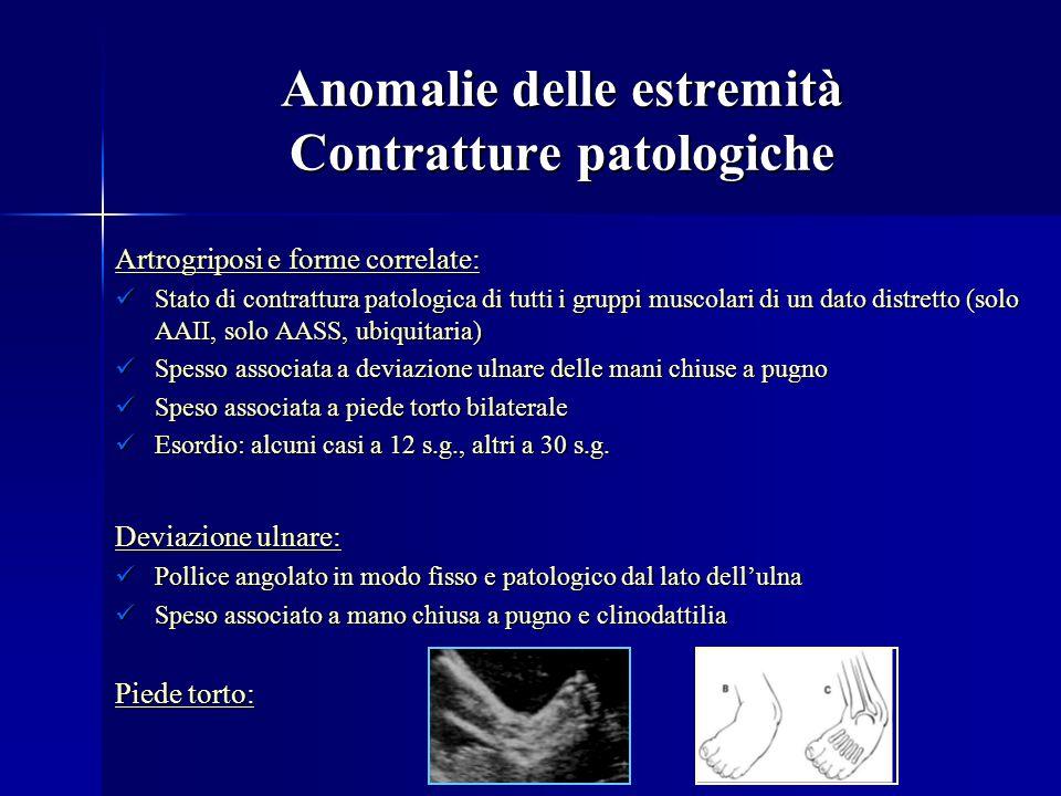 Anomalie delle estremità Contratture patologiche