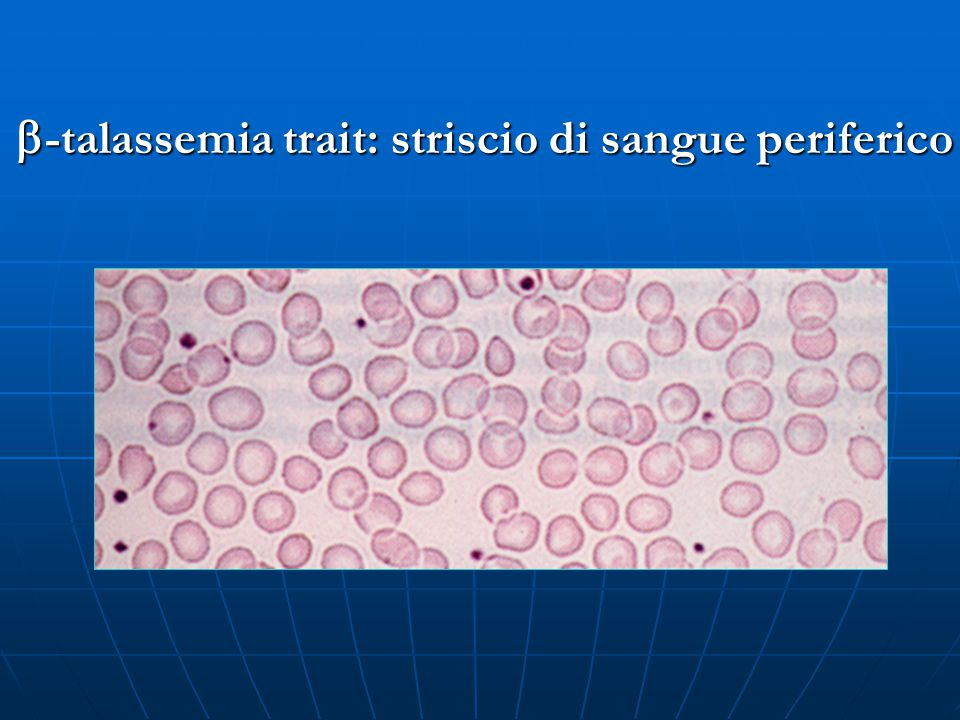 b-talassemia trait: striscio di sangue periferico