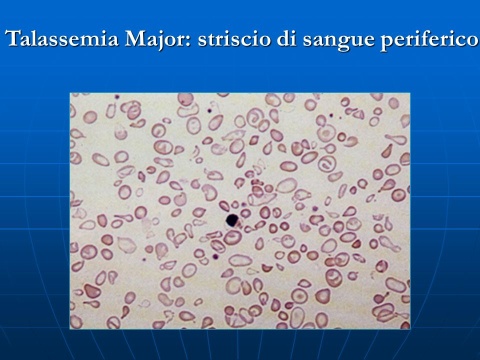 Talassemia Major: striscio di sangue periferico
