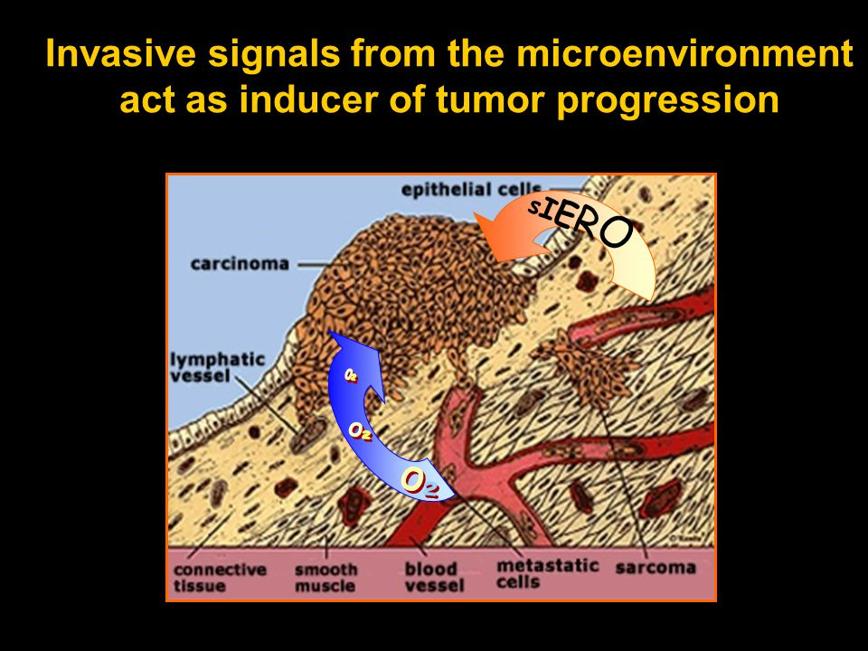 Invasive signals from the microenvironment act as inducer of tumor progression