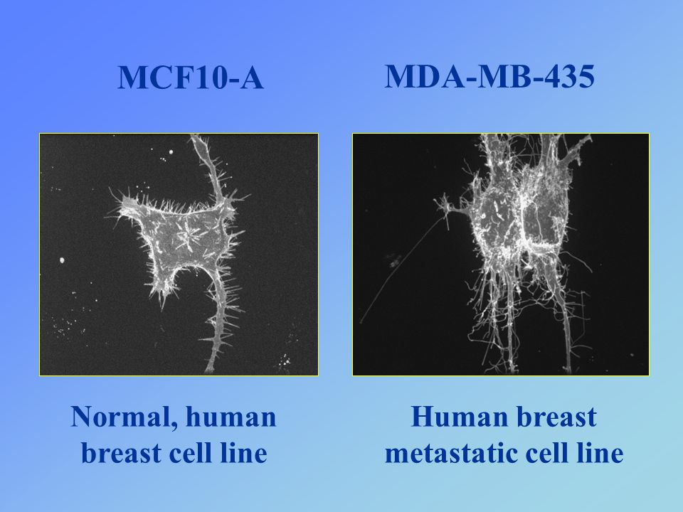 Normal, human breast cell line Human breast metastatic cell line