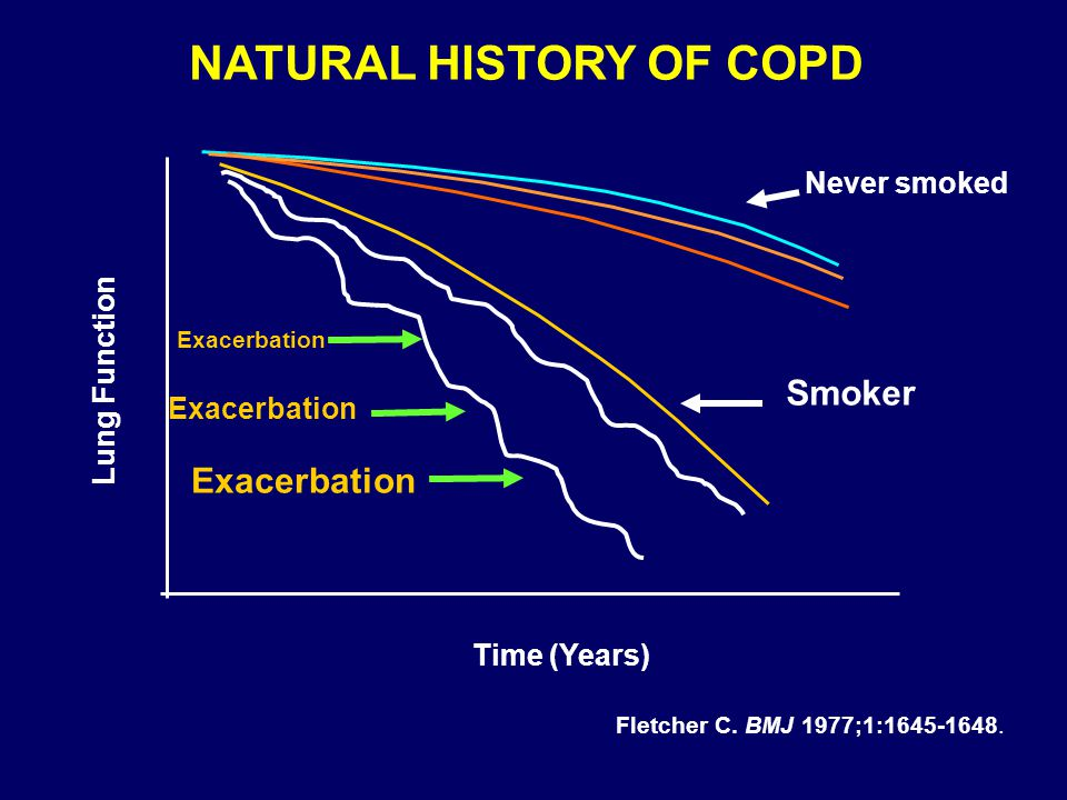 NATURAL HISTORY OF COPD