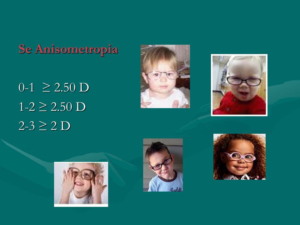 Se Anisometropia 0-1 ≥ 2.50 D 1-2 ≥ 2.50 D 2-3 ≥ 2 D