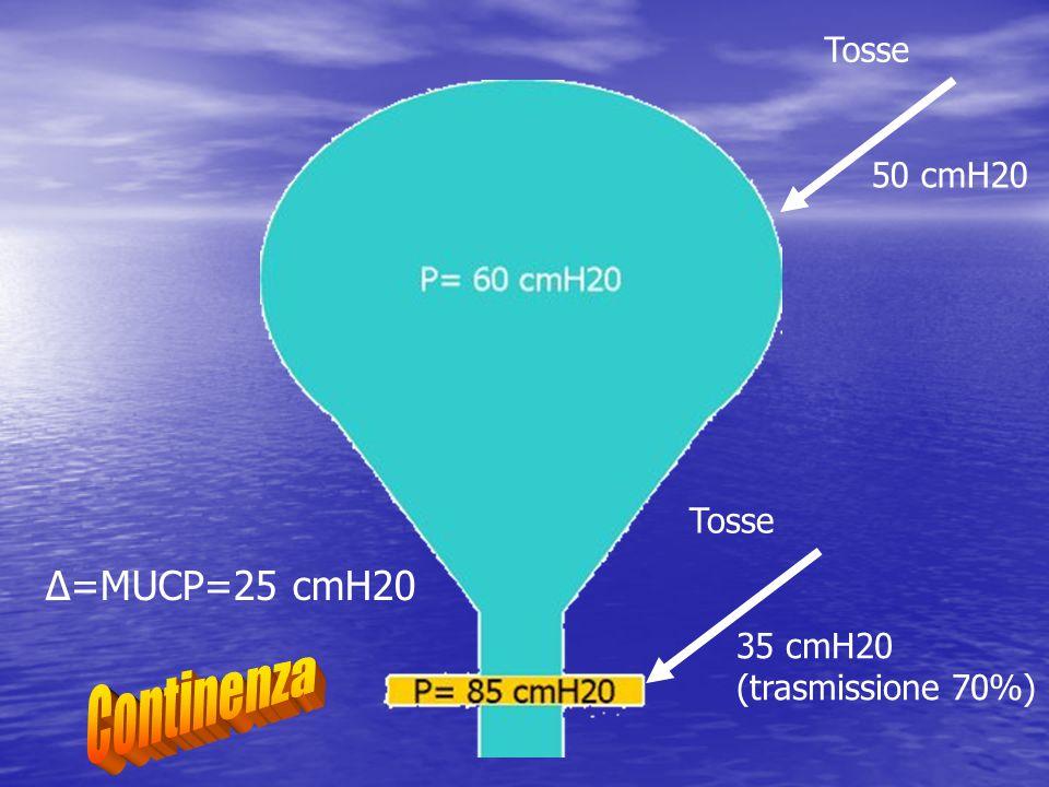 Continenza Δ=MUCP=25 cmH20 Tosse 50 cmH20 Tosse 35 cmH20