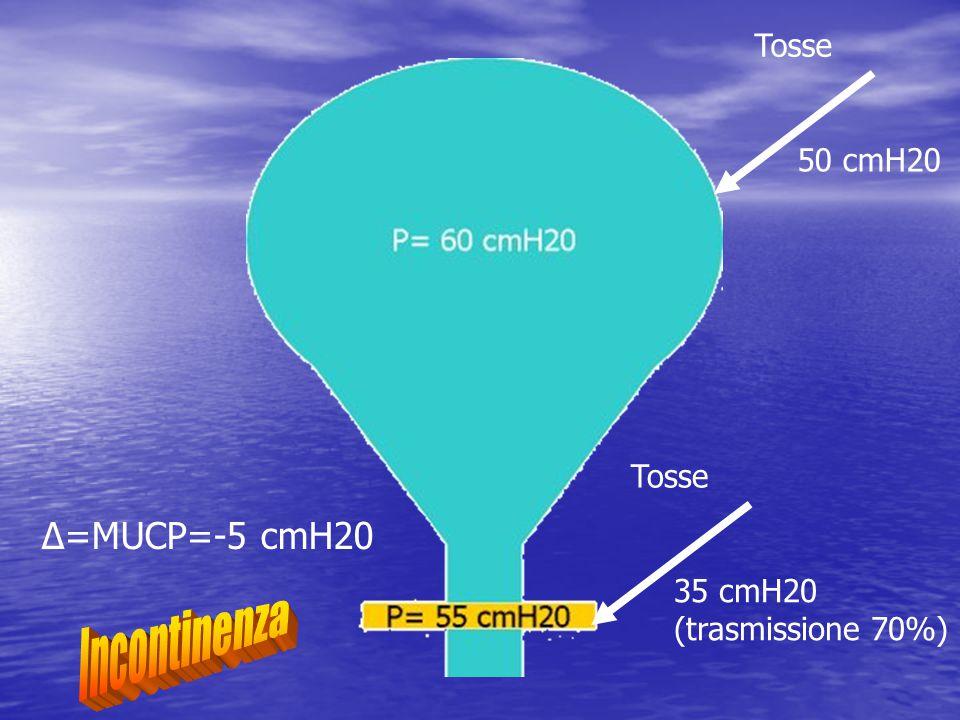 Incontinenza Δ=MUCP=-5 cmH20 Tosse 50 cmH20 Tosse 35 cmH20