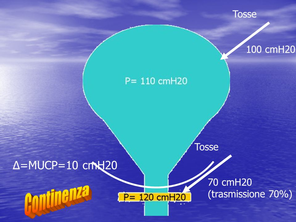 Continenza Δ=MUCP=10 cmH20 Tosse 100 cmH20 Tosse 70 cmH20