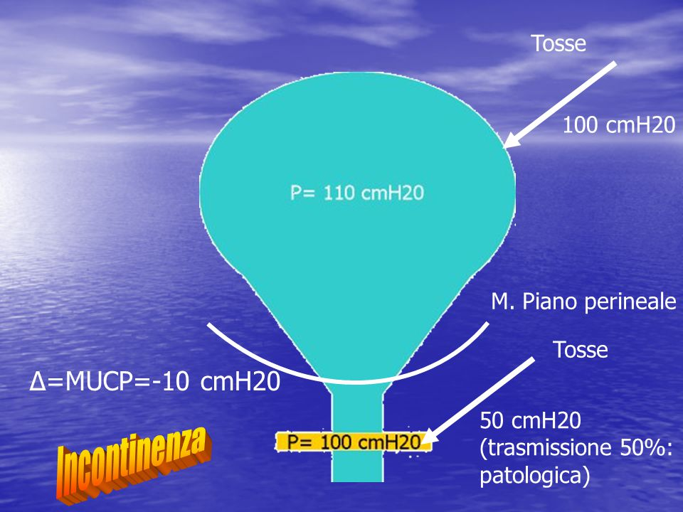 Incontinenza Δ=MUCP=-10 cmH20 Tosse 100 cmH20 M. Piano perineale Tosse