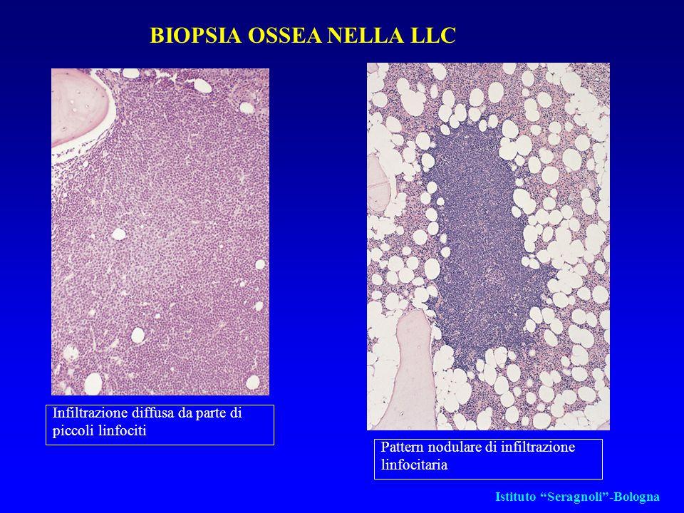 BIOPSIA OSSEA NELLA LLC