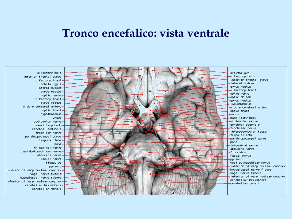 Tronco encefalico ppt video online scaricare for Piani del ponte anteriore