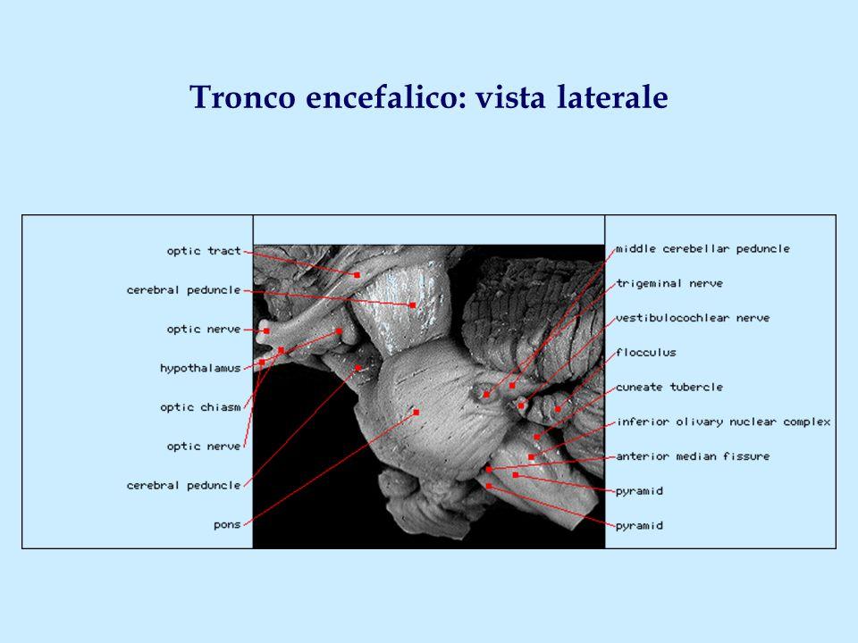 Tronco encefalico: vista laterale