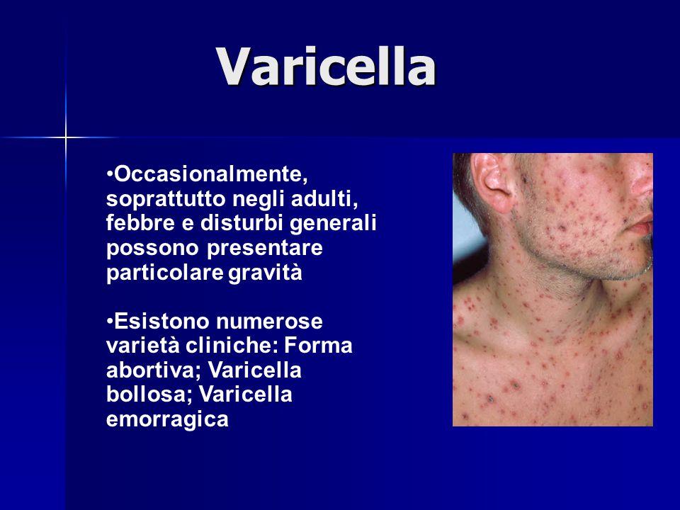 Varicella Occasionalmente, soprattutto negli adulti, febbre e disturbi generali possono presentare particolare gravità.