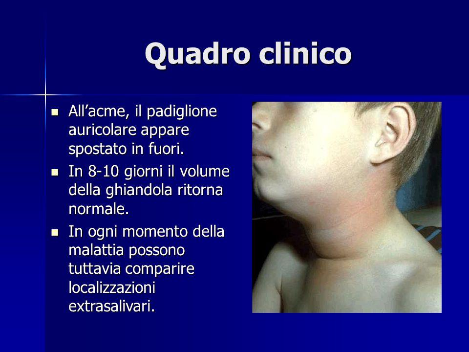 Quadro clinico All'acme, il padiglione auricolare appare spostato in fuori. In 8-10 giorni il volume della ghiandola ritorna normale.