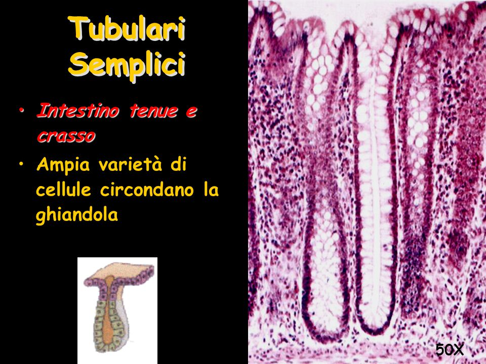 Tubulari Semplici Intestino tenue e crasso