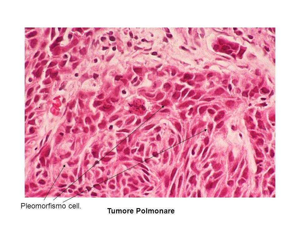 Pleomorfismo cell. Tumore Polmonare