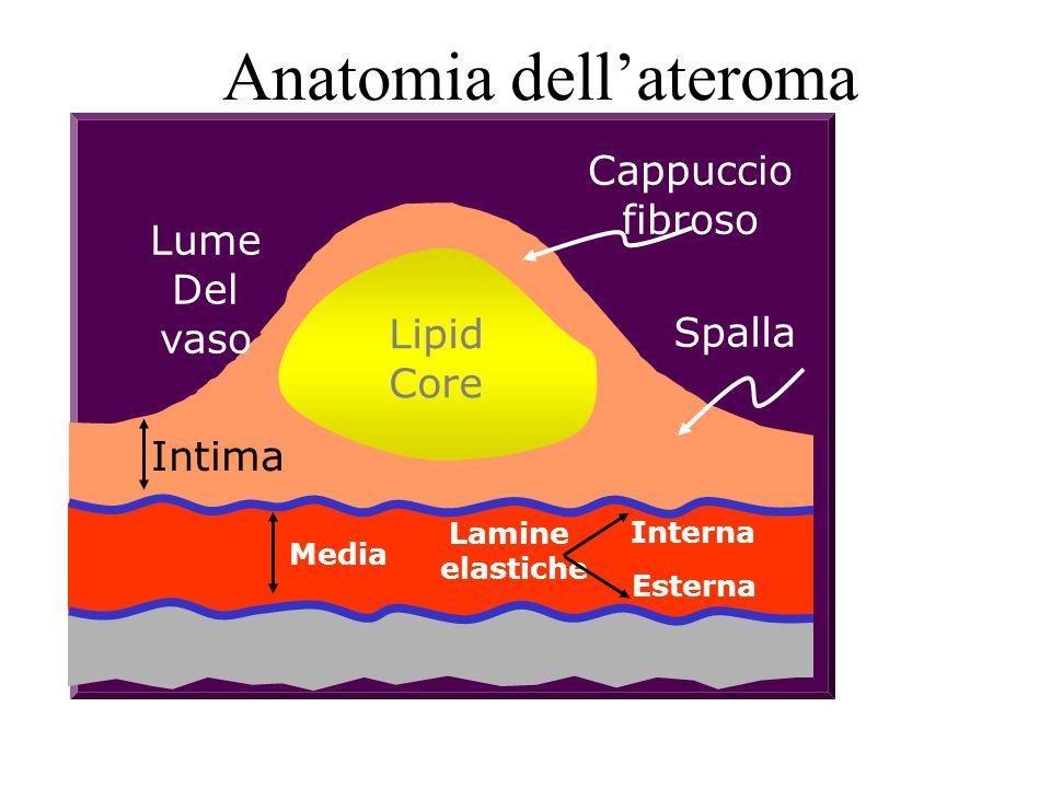 Anatomia dell'ateroma