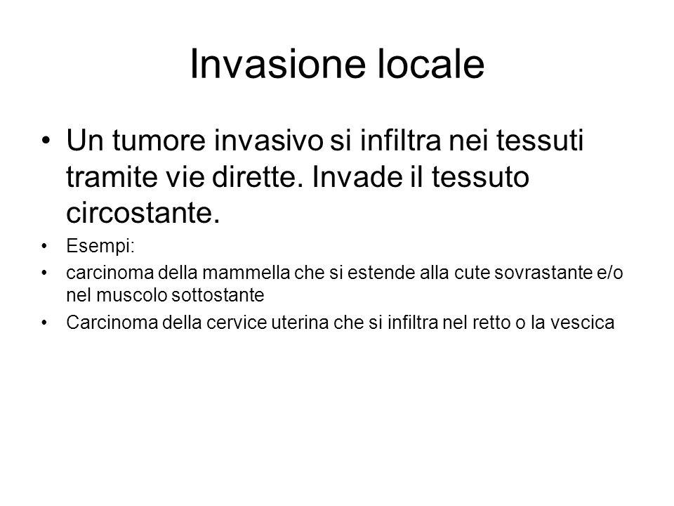 Invasione locale Un tumore invasivo si infiltra nei tessuti tramite vie dirette. Invade il tessuto circostante.