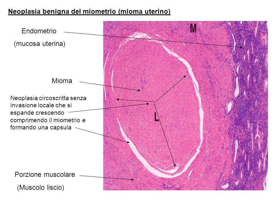 Neoplasia benigna del miometrio (mioma uterino)