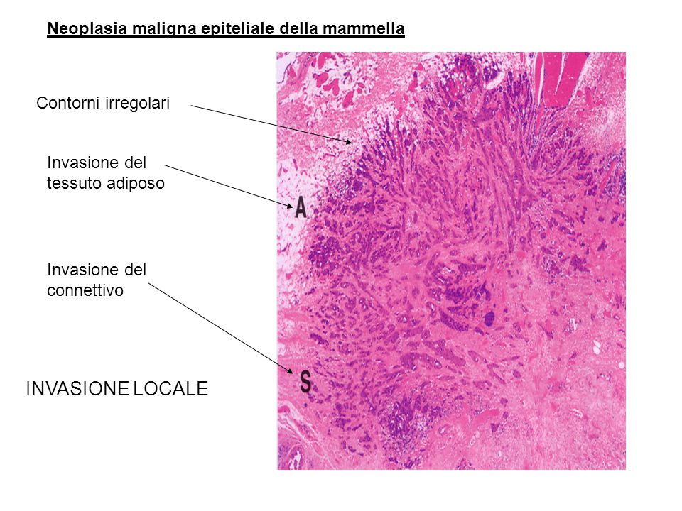 INVASIONE LOCALE Neoplasia maligna epiteliale della mammella