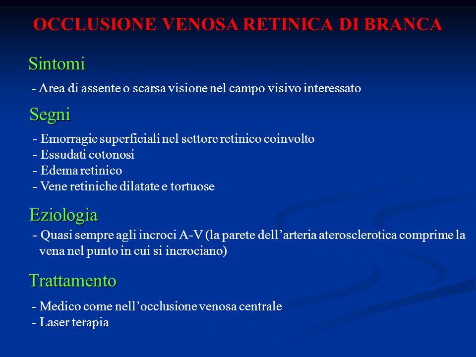 OCCLUSIONE VENOSA RETINICA DI BRANCA