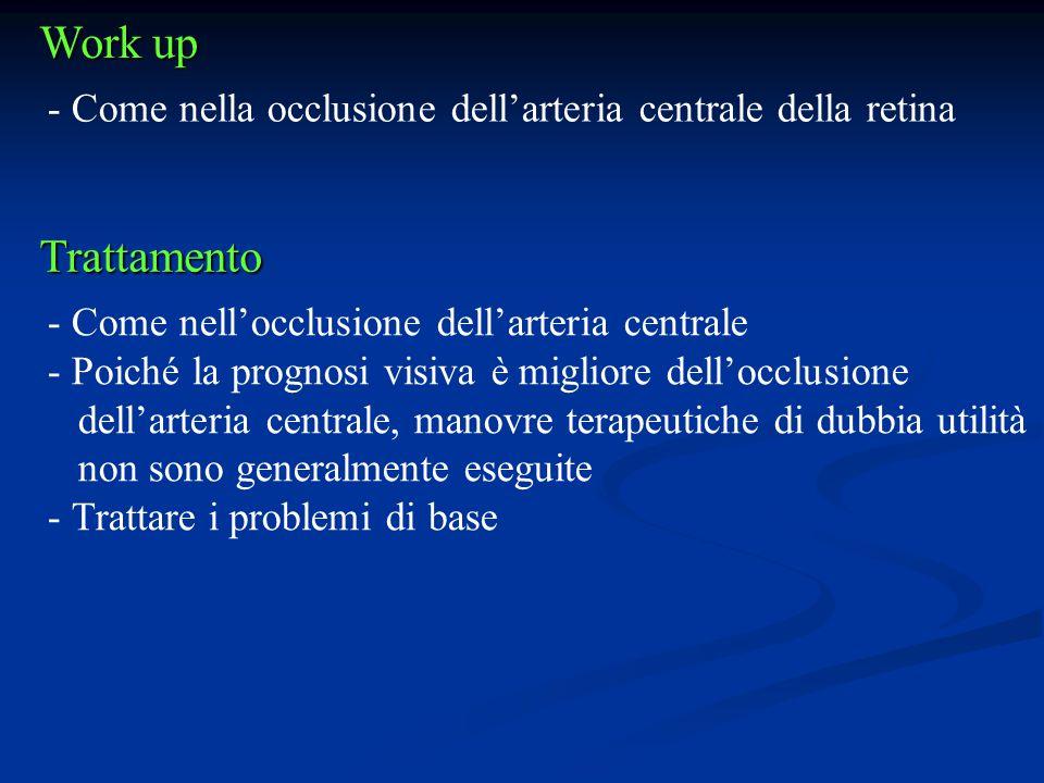 Work up Come nella occlusione dell'arteria centrale della retina. Trattamento. Come nell'occlusione dell'arteria centrale.